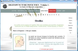 Exemple d'affection traitée avec le logiciel de Digitopuncture pour Tous